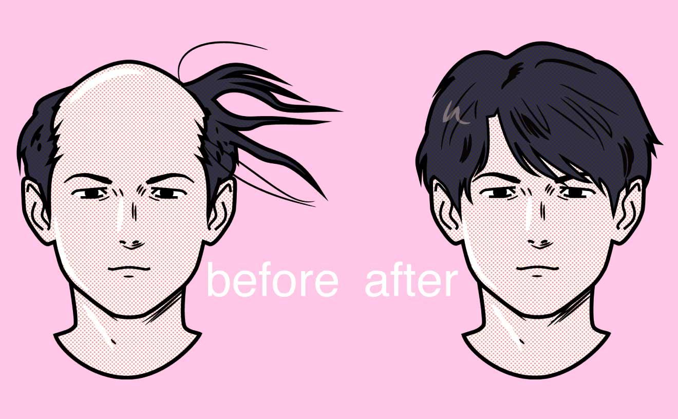 薄毛予防と対策