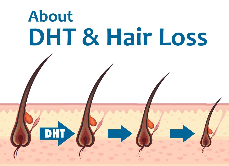 薄毛の敵DHTを抑制しよう